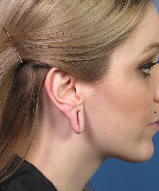 ear_02