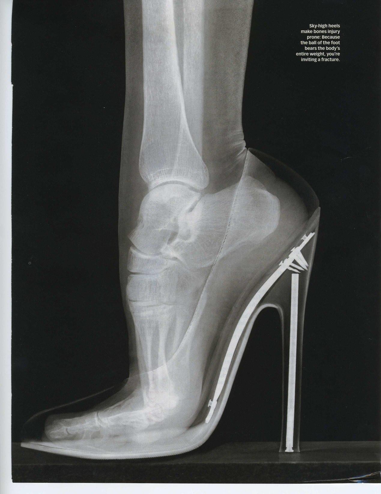 high-heel-trouble